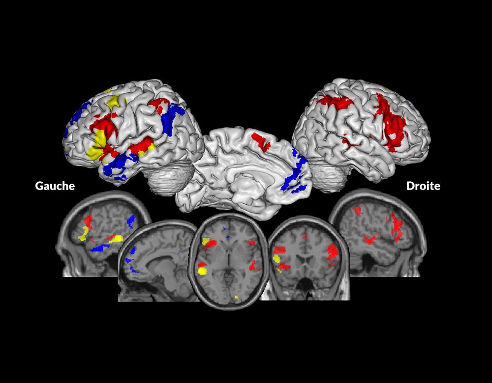 Zone cerveau